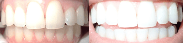 before and after image - teeth whitening